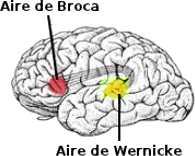 broca-wernicke